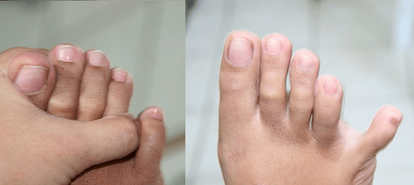 foot personality