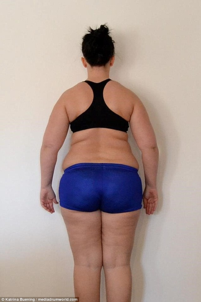 woman-lost-weight-allergy