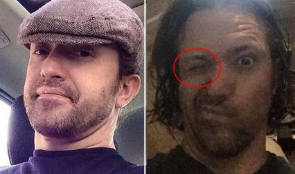 This Man Slept In His Contact Lenses. What Happened Next To Him Was Scary!