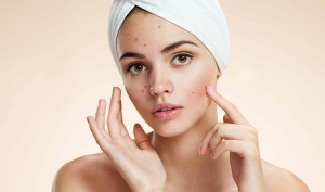 Natural Acne Cures – 5 Healthy Foods That Cause Acne Breakouts