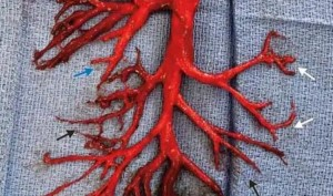 Man coughs out 6-inch big blood clot formed in exact shape of a lung passage